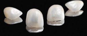 Προσθετική δοντιών Ιωάννινα