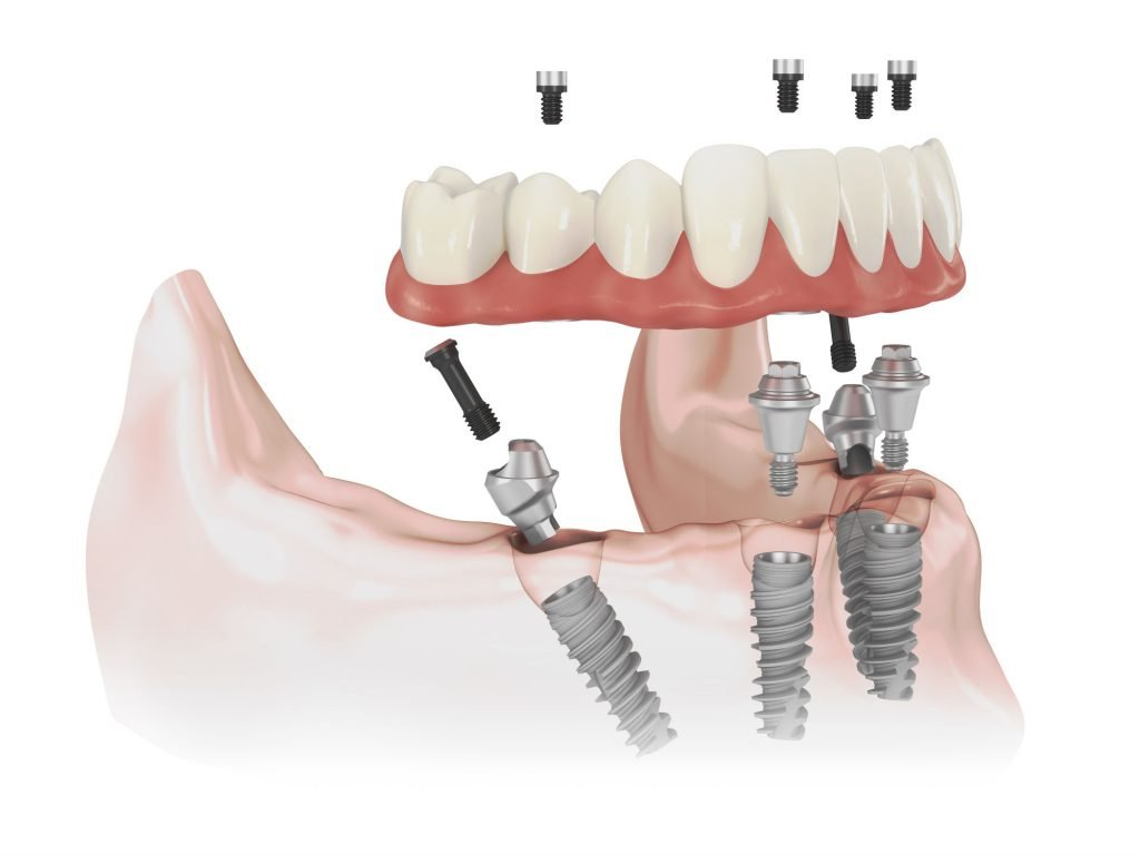 Καινοτόμες τεχνικές Αισθητικής Προσθετικής και Χειρουργικής Εμφυτευμάτων