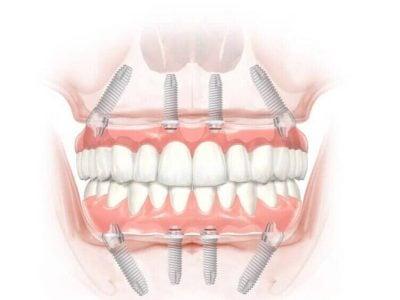 All on 4 εμφυτεύματα δοντιών σε μια μέρα